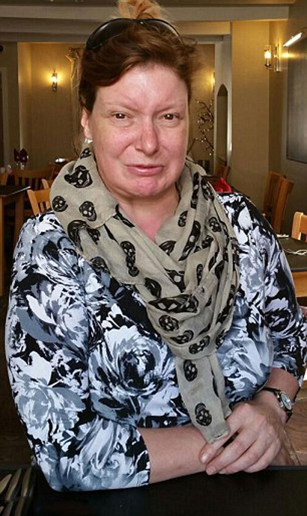 سيدة بريطانية لم تبتسم منذ 34 عاما